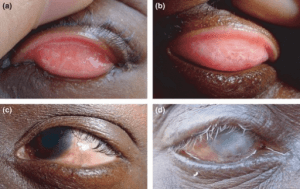 trachom