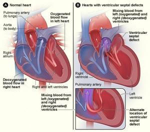 ventrikelseptumdefekt