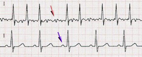 EKG-vorhofflimmern