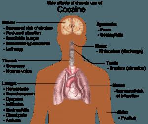 Kokainmissbrauch