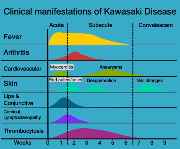 Kawasaki Coronary Aneurysm