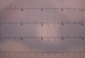 vorhofflattern-EKG