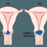 zervixkarzinom-stadium-1B