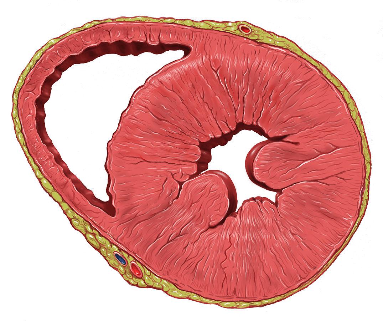 Herzphysiologie: Konzentrische und exzentrische Hypertrophie